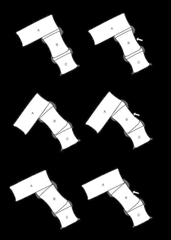 図1-1  骨と筋のモデル1