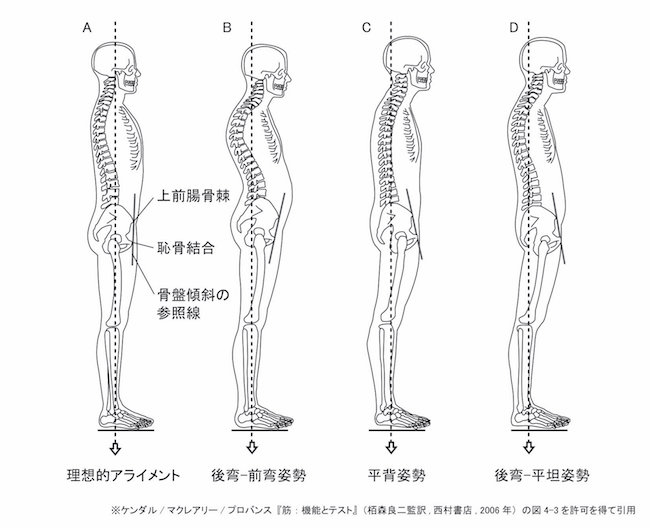図1−3 姿勢の4つのタイプ
