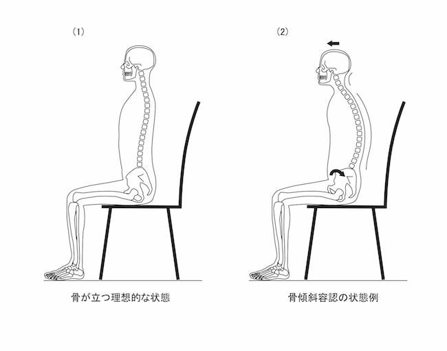 図1ー4 座位における骨傾斜容認の状態例