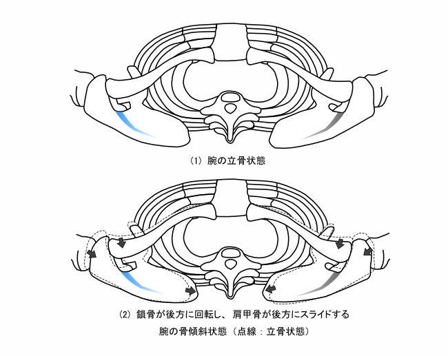図2−4  腕の立骨状態と骨傾斜状態(上方視)