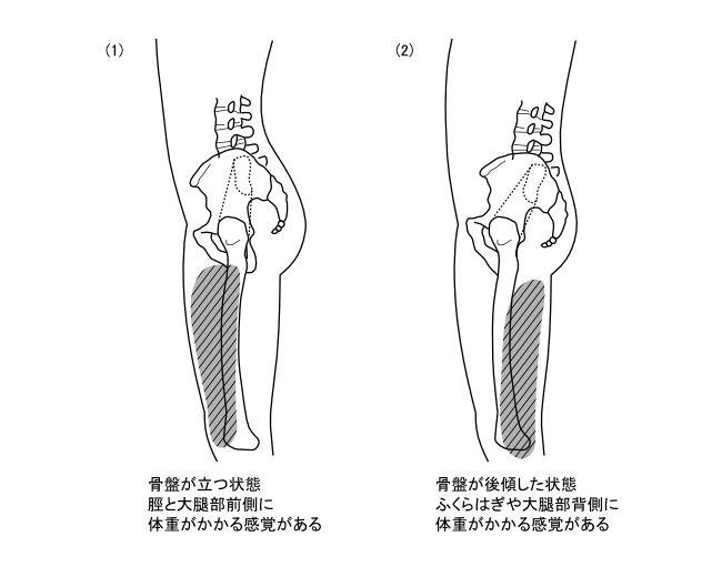 図6−2 骨盤の立骨状態